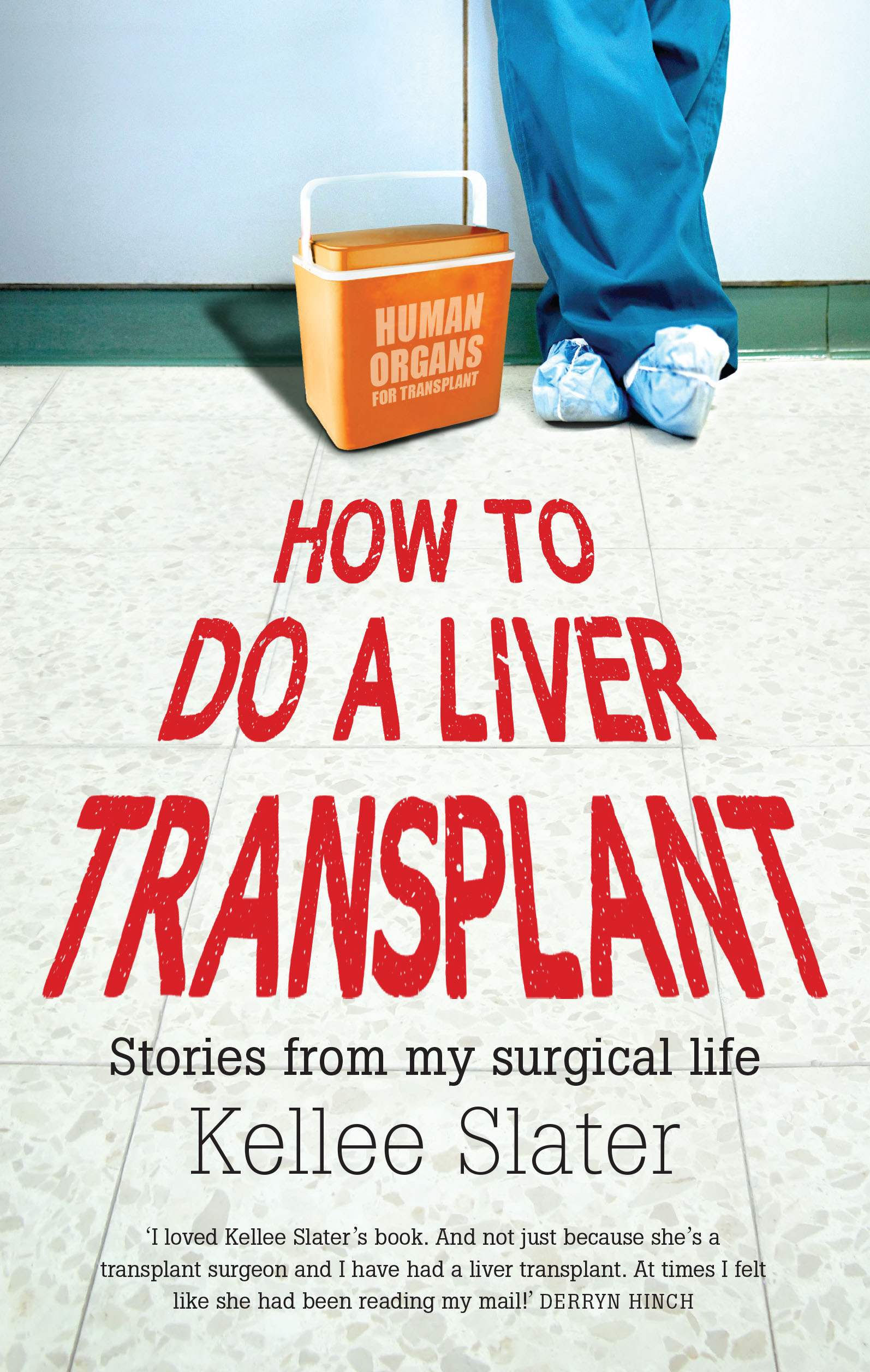 liver transplant Duke adult liver transplant outcomes are among the nation's best.
